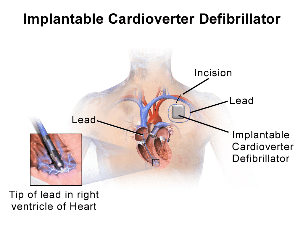 ICD Lead Diagram